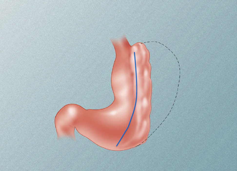 Endoscopic Sleeve Gastroplasty